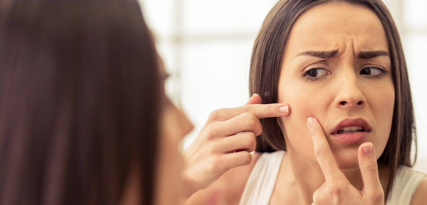 Combat Acne with these 5 Essential Tips