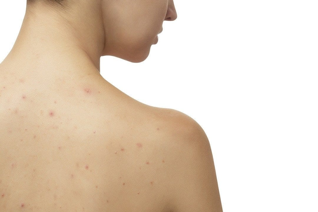 Find the Right Skin Care Products to Combat Back and Body Acne