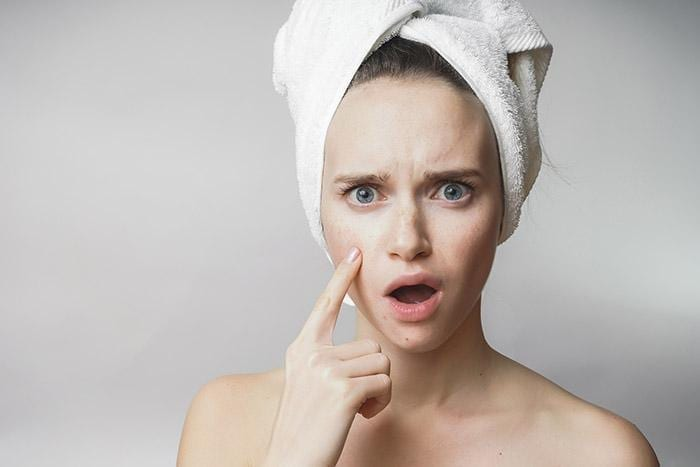 5 Expert Tips on How to Treat and Combat Adult Acne