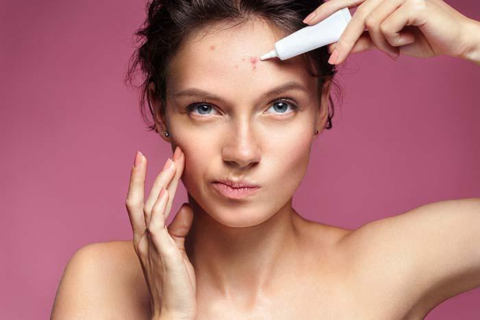 How to Hide Your Acne Without a Trace