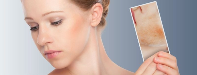 Ingredients to Look for in Top Skin Care Products for Rosacea