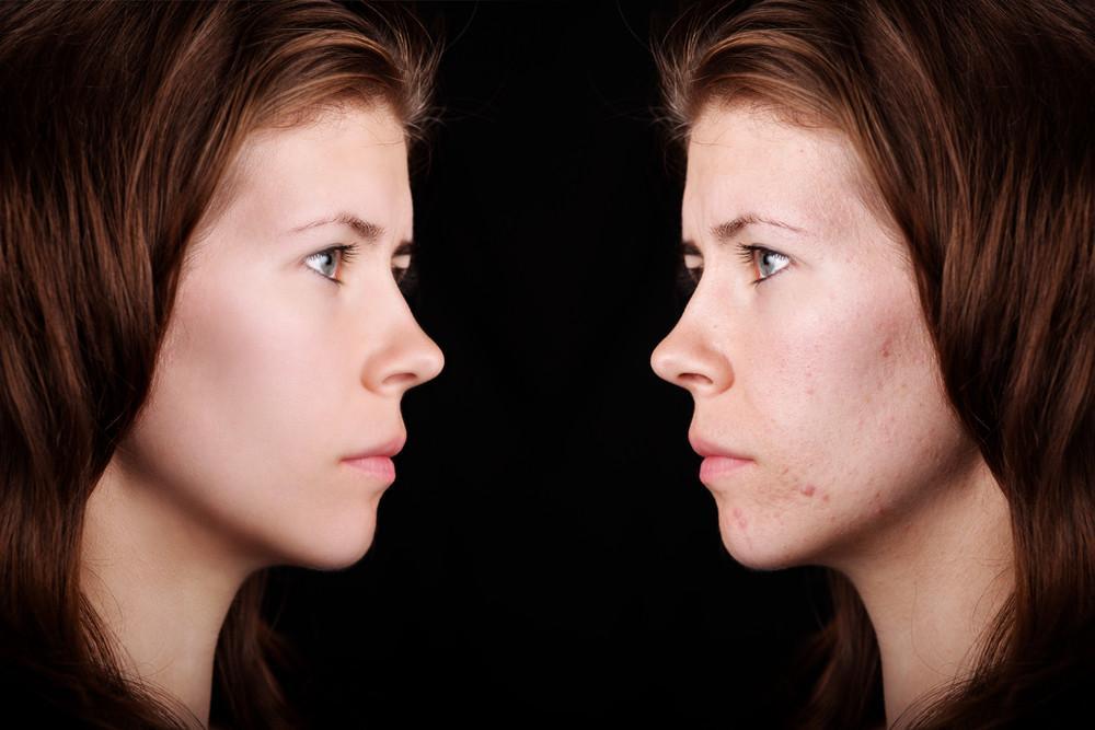 Choosing The Best Moisturizer For Acne Prone Skin: Not An Easy Task