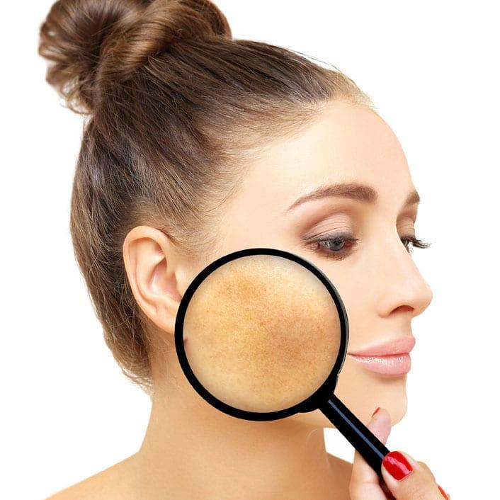 Melasma Skin Care