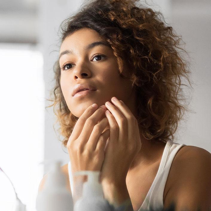 Skin Tips for Acne Prone Skin Image