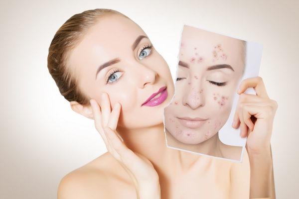 Skin Care Regimen for Acne Prone Skin