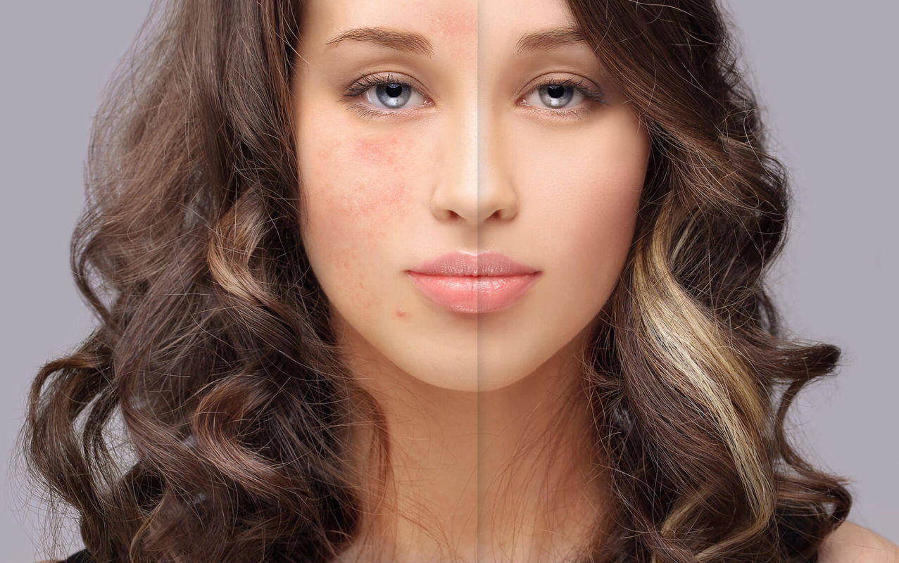 Makeup for Rosacea picture