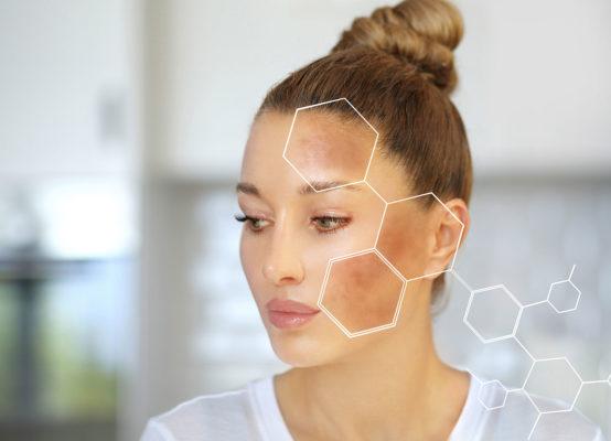 Skincare Routine for Melasma Image