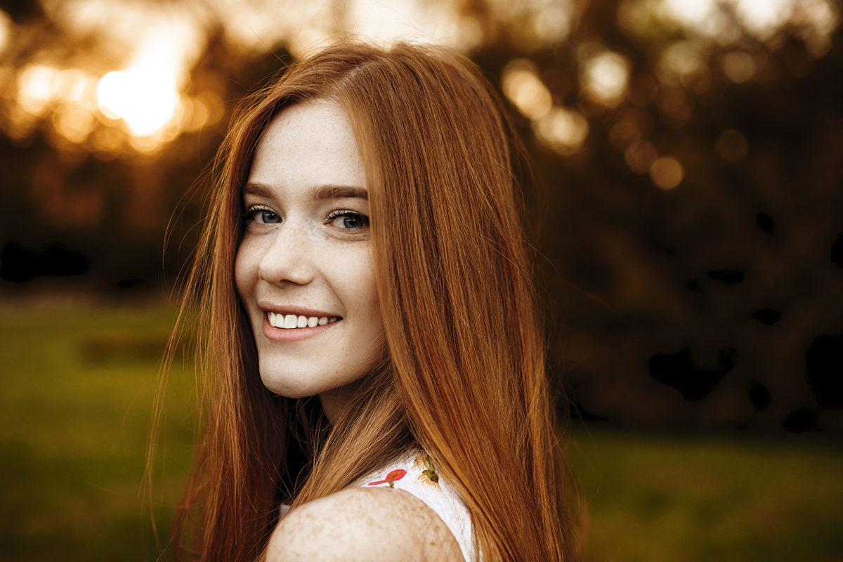 5 Tips for Freckles In Summer image of young woman with freckles